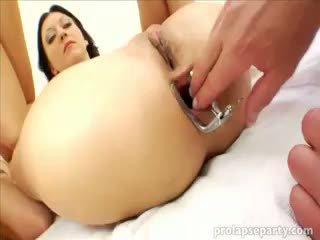 Anale prolapsing në the gynecologist